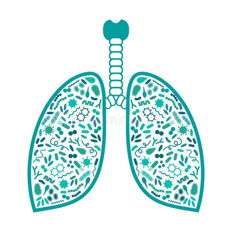 bactérias e vírus no sistema respiratório, infecção do pulmão ilustração stock