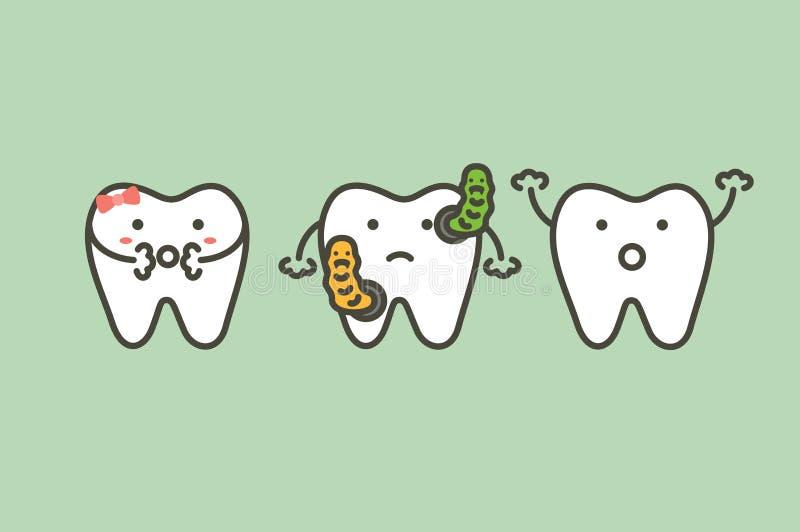 Bactéries dans des causes de dents de dent ou de caries de délabrement illustration de vecteur