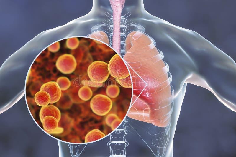 Bactéries de pneumoniae de mycoplasma dans des poumons humains illustration libre de droits