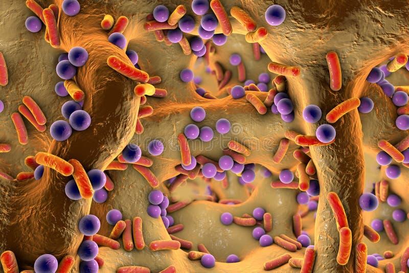 Bactéries sphériques et en forme de tige à l'intérieur de tissu d'os illustration de vecteur