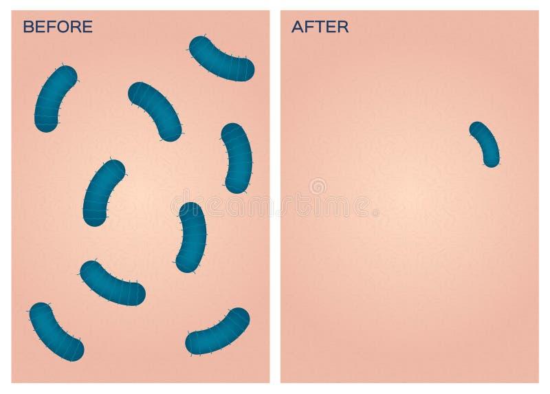 Bacteriën op huid, voordien daarna stock illustratie
