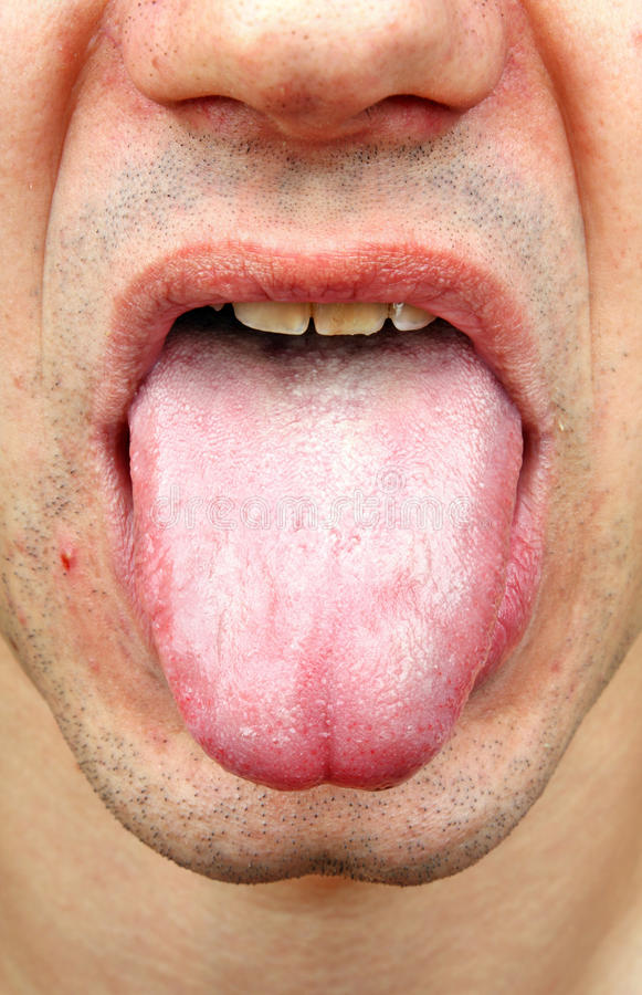bacterial infection disease tongue stock photo image of