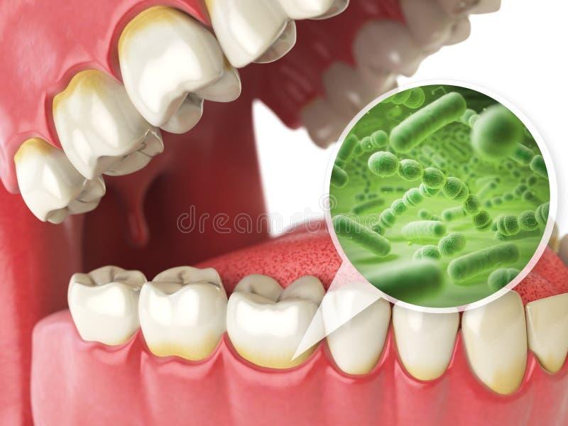 Bacterias et virus autour de dent Conce médical d'hygiène dentaire illustration stock
