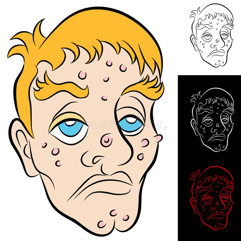 Bad Face Man. An image of a man with face blemishes vector illustration
