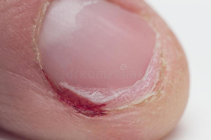 Bad habit, gnawed nail, rip off nails, cuticle and blood, finger macro, burr stock photo