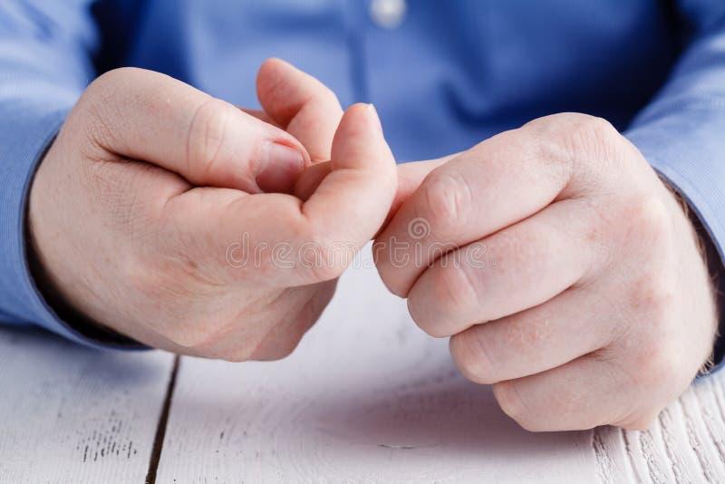 Bad habit of nibbling nails stock photography