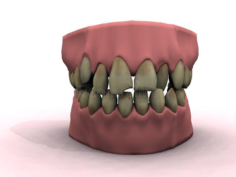 Download Bad hygiene stock illustration. Illustration of ugly, infection - 1834650