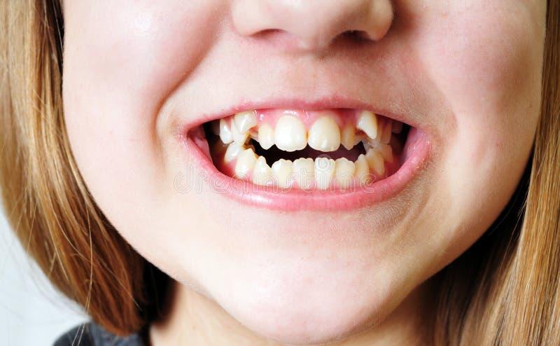 Bad teeth. Close up - bad crooked teeth of girl stock photography