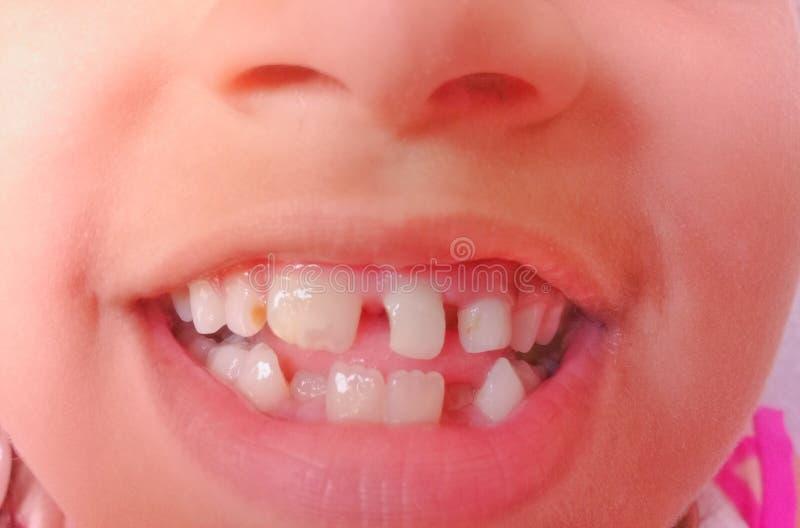 Bad teeth. Bad baby teeth gap in teeth stock image