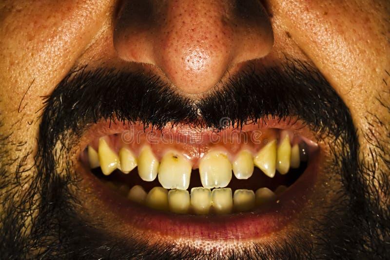Bad Teeth. Close up shot for bad teeth royalty free stock image