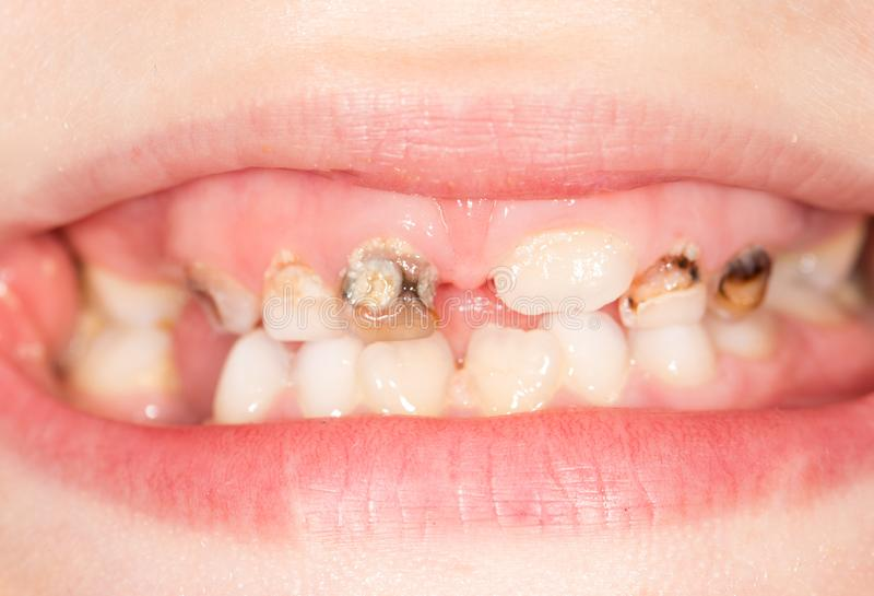 Bad teeth in the mouth. close-up. Photos in the studio stock photos