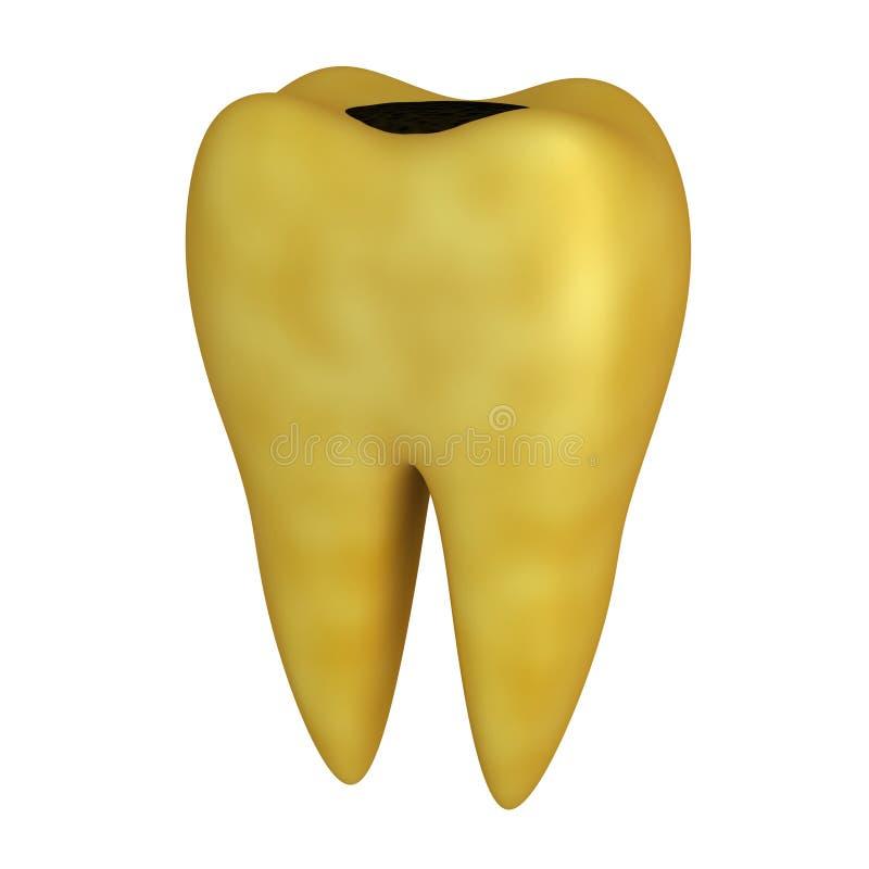 Download Bad tooth stock illustration. Image of stomatology, incrustation - 22209292
