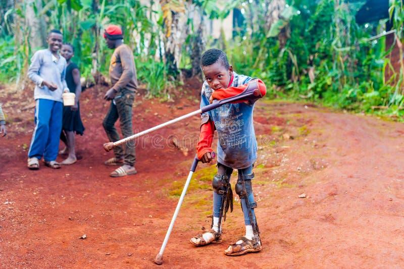 Bafoussam Kamerun - 6 august 2018: ungt afrikanskt pojkeoffer av kriglandmina med benbrott som går med kryckor i lantligt royaltyfri bild