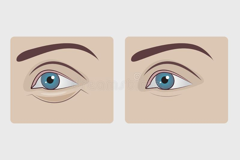 Puffy Eyes Stock Illustrations – 137 Puffy Eyes Stock