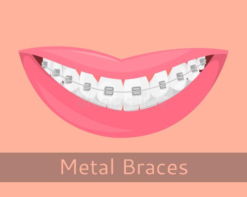 Bagues dentaires, lèvres de sourire dans le style de bande dessinée Souriez avec les accolades, illustration sur le sujet de la s illustration libre de droits