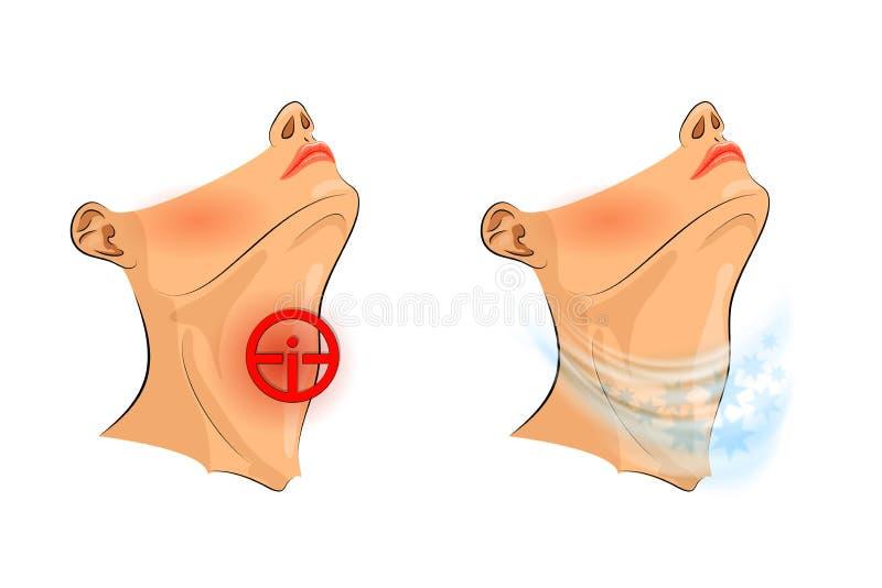bakgrundshand som isoleras över för halswhite för ställe sjuk öm kvinna den öm halsen, smärtar lättnad royaltyfri illustrationer