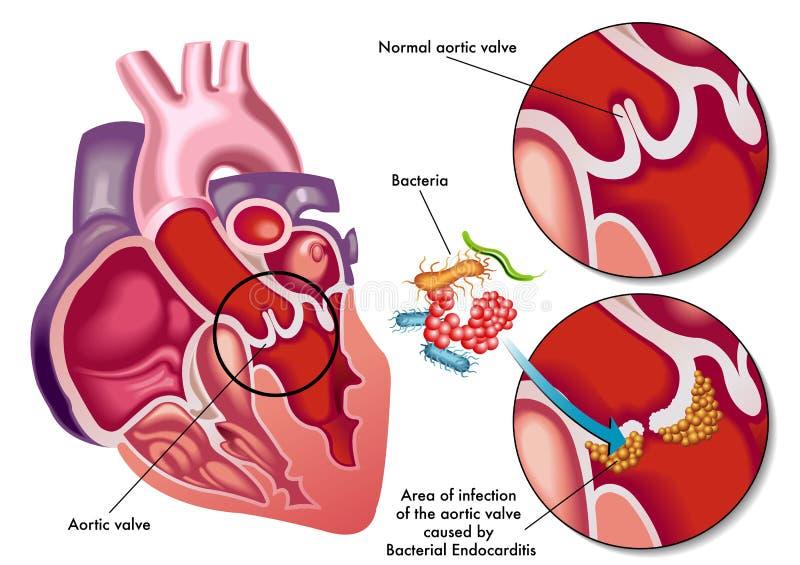 Bakterie- endocarditis royaltyfri illustrationer