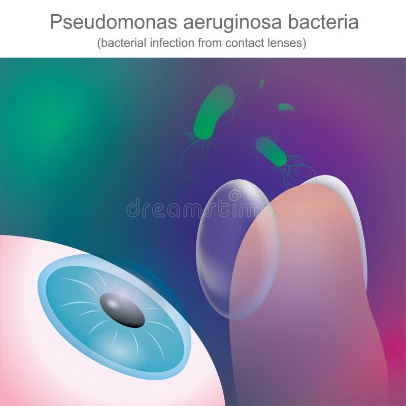 Bakterie- infektioner från kontaktlinser, är resistenta till antibien vektor illustrationer