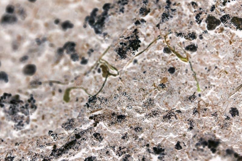 Bakterie lub komórki pod mikroskopem Mnożenie bakterie lub infekcja Naukowy doświadczenie Drobnoustroje atakuje komórki obrazy royalty free
