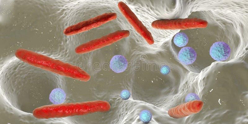 Bakterie wśrodku stomatologicznego zagłębienia ilustracja wektor