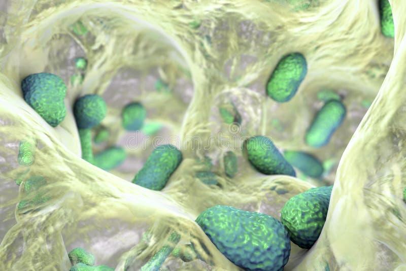 Bakterien-Acinetobacter baumannii innerhalb des Biofilm vektor abbildung