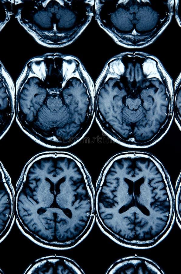 Balayage d'IRM de cerveau pour le diagnostic photographie stock libre de droits