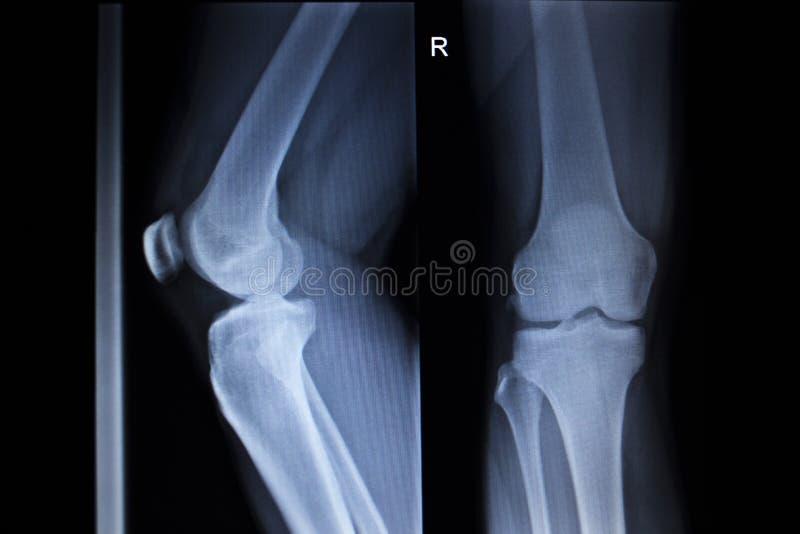 Balayage d'orthopédie de rayon X de blessure à la jambe douloureuse de ménisque de genou photographie stock libre de droits
