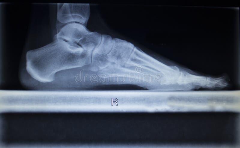 Balayage d'orthopédie de rayon X de l'incidence de poids de charge de blessure de pied images libres de droits