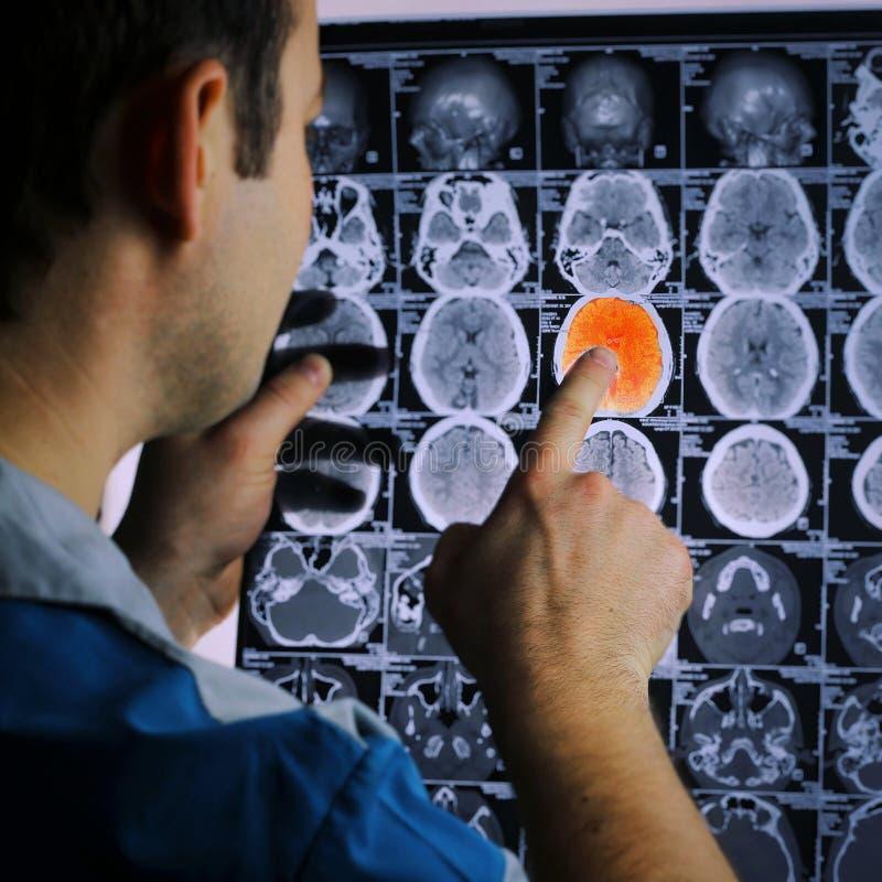 Balayage de CT du cerveau Image de rayon X du cerveau Course ischémique Docteur, regardant la radiographie d'une tomographie d'or photos stock