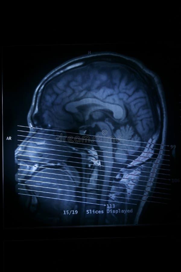 Balayage de MRI photographie stock