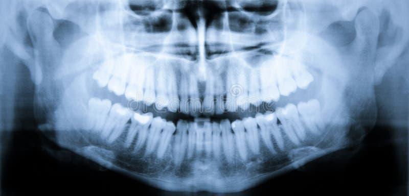 Balayage de rayon X des dents photographie stock libre de droits