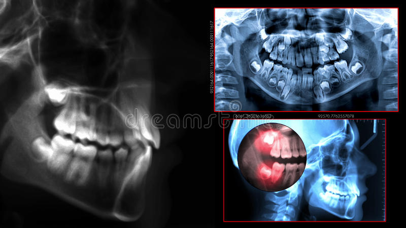 Balayage dentaire de radiographie photographie stock