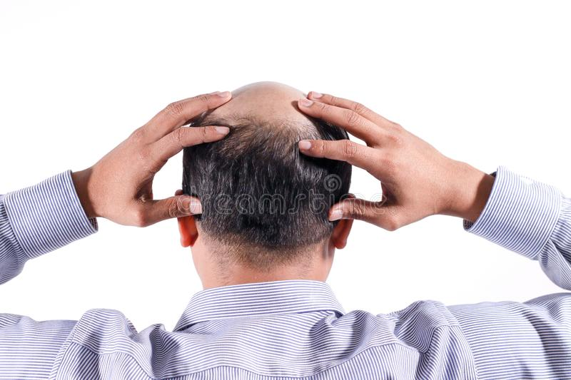 bald businessman with his head on scalp view from behind with white background stock photos