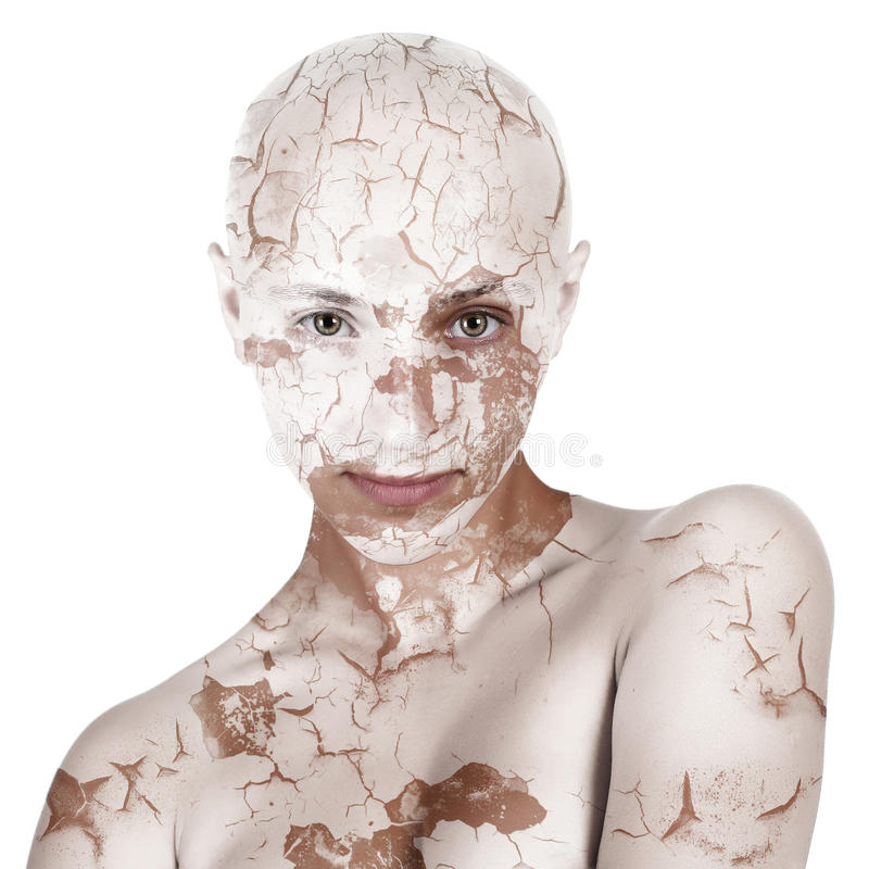 Bald girl with dry skin royalty free stock image