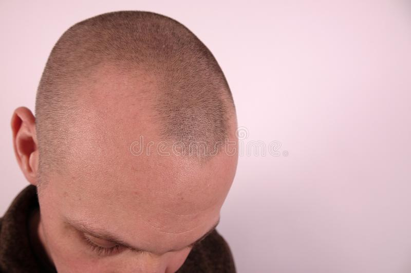 Bald head. A guy who begins to be thin-haired. Copyspace for text on white royalty free stock images