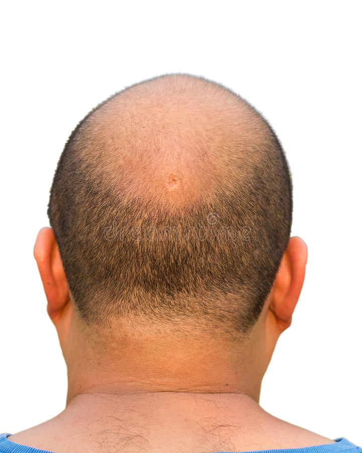 Bald head isolation. Of a fat guy stock photography