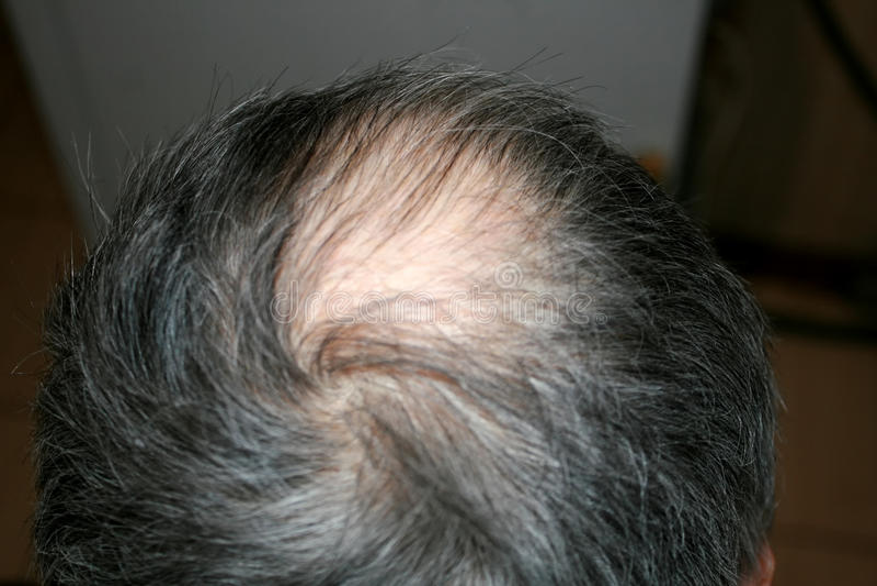 Bald head of a man. Receding hairline. Bald head of a man. Receding hairline royalty free stock photo