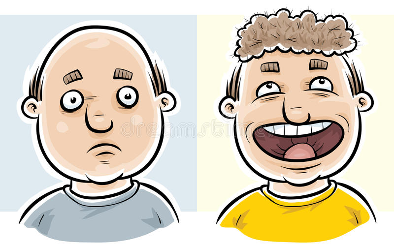 Bald Before and After stock illustration