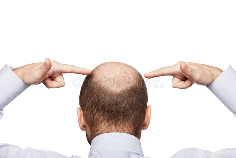 Download Bald man head stock image. Image of black, healthcare - 23975861