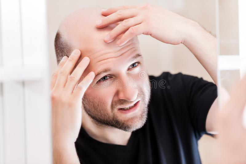 Bald man looking mirror at head baldness and hair loss stock photography
