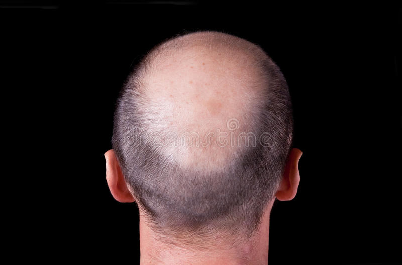 Bald man's head stock images