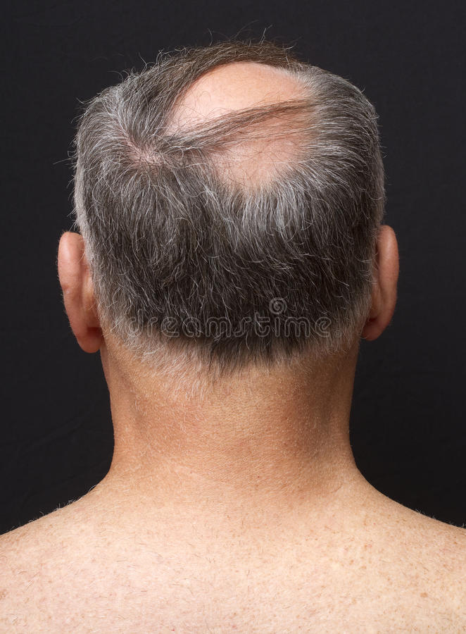 Balding Man's Head Portrait stock photos