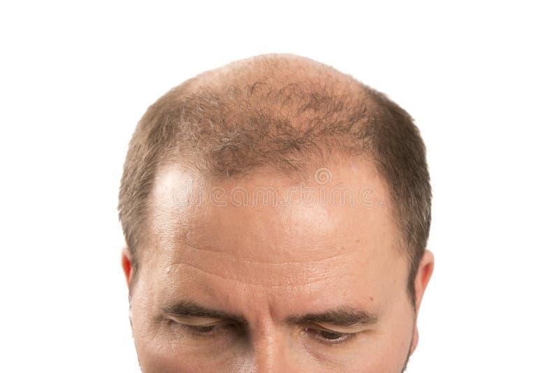 Baldness Alopecia mężczyzna włosianej straty haircare zdjęcia royalty free