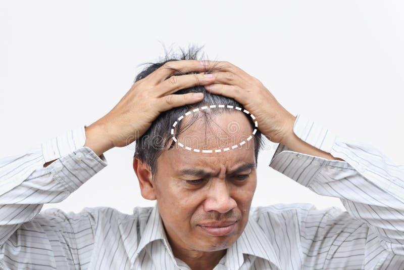 Baldness hair loss led to Mid-life Crisis royalty free stock photo