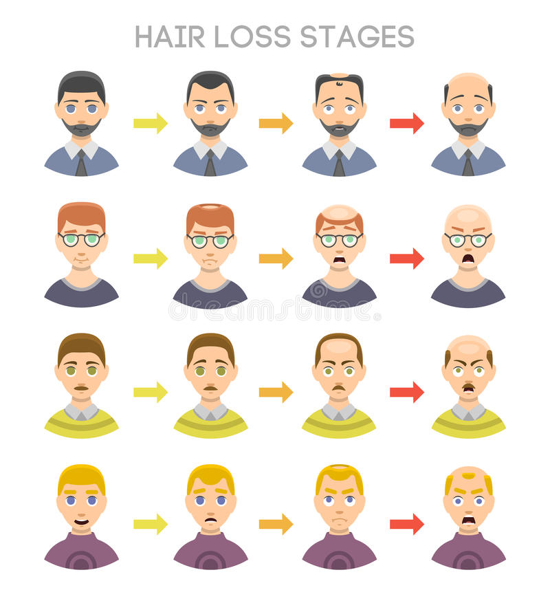 Baldness stages vector set. Information chart of hair loss stages and types of baldness illustrated on a male head. Medical health problem baldness stages stock illustration