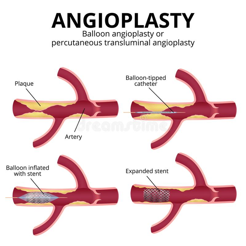 Balloon angioplasty. Angioplasty, percutaneous transluminal angioplasty PTA , stages of operation, artery with plaques in a section vector illustration
