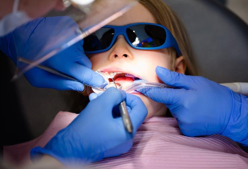 Bambina che riceve procedura di riempimento dentaria in clinica dentaria pediatrica immagini stock