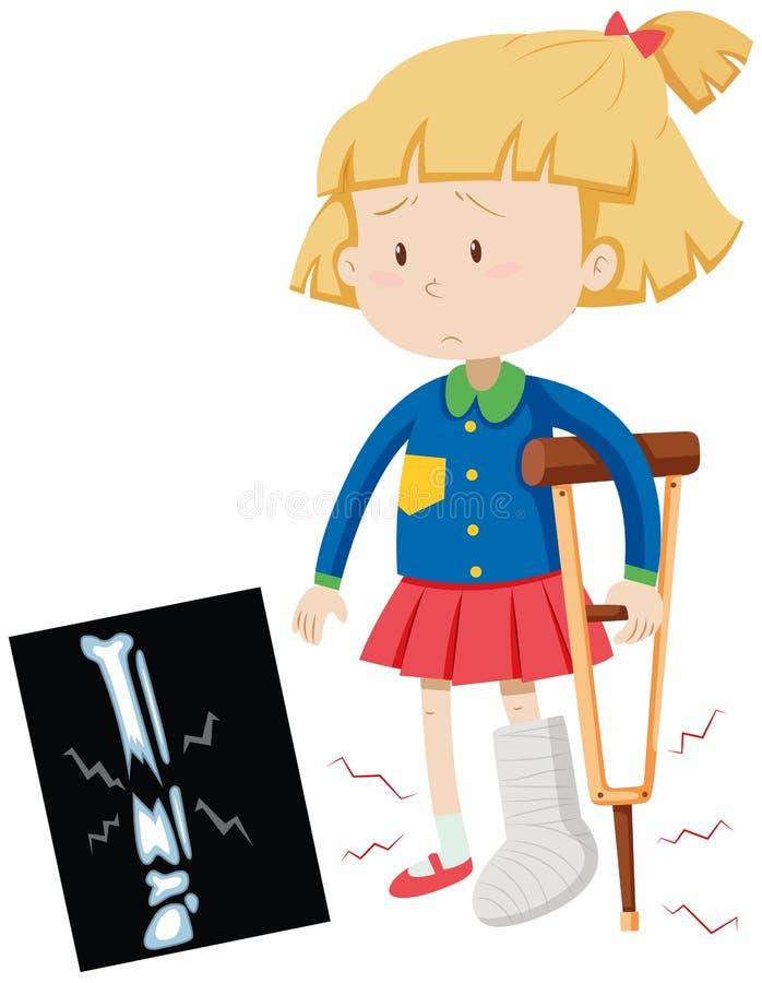 Bambina con la gamba rotta royalty illustrazione gratis