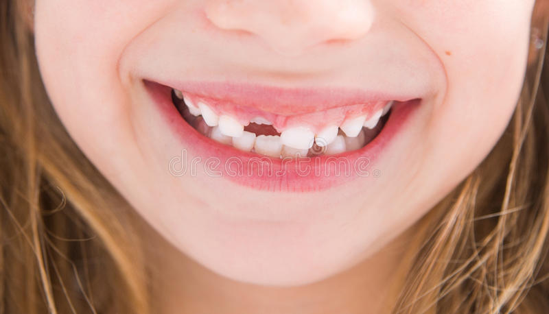 Bambina senza un dente immagine stock
