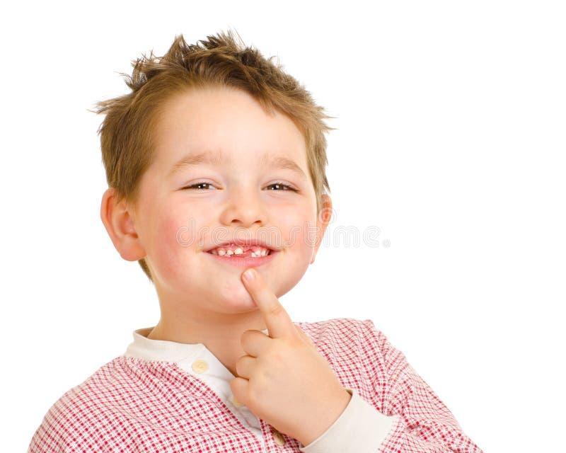Bambino che mostra fuori i suoi denti persi fotografia stock